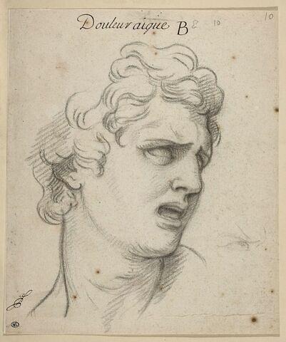 La Douleur aiguë : tête d'homme, vue de trois-quarts
