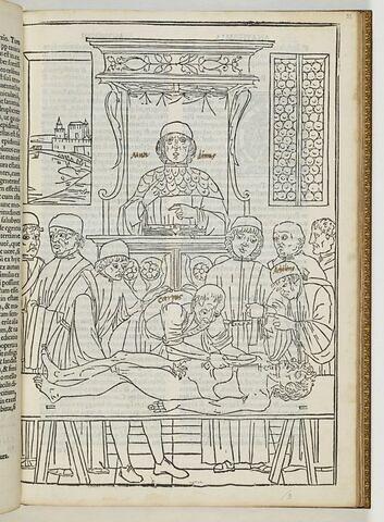 Tractatus nonus. Anathomia mondini